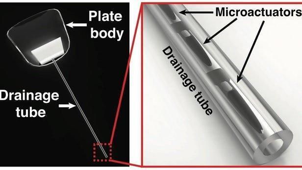 درمان آب سیاه با ایمپلنت آهنربایی